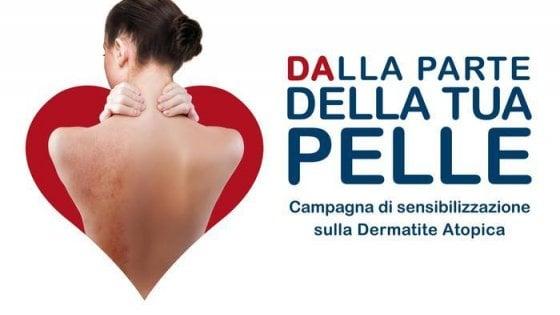 Campagna Dermatite Atopica